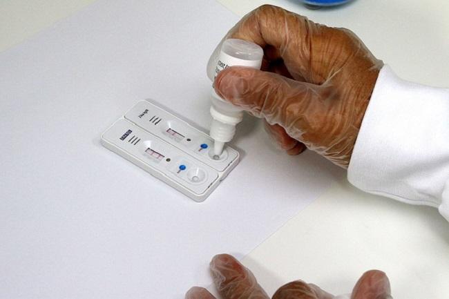Zika: Ministério da Saúde distribui 3,5 milhões de testes